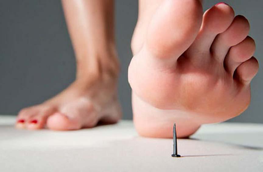 Fibromialgia: La vida con dolor